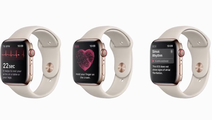 Apple Watch 4 EKG, zegarek z EKG, smartwatch, elektrokardiogram