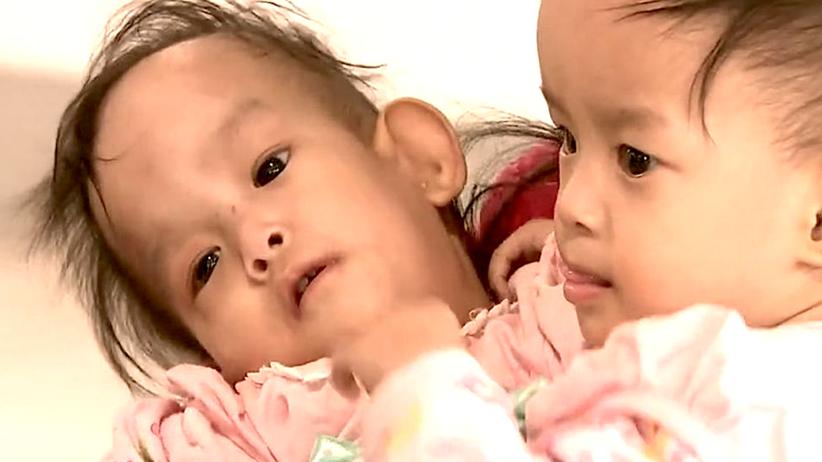 Nima i Dewa, bliźnięta syjamskie, operacja sióstr syjamskich, Australia, Bhutan