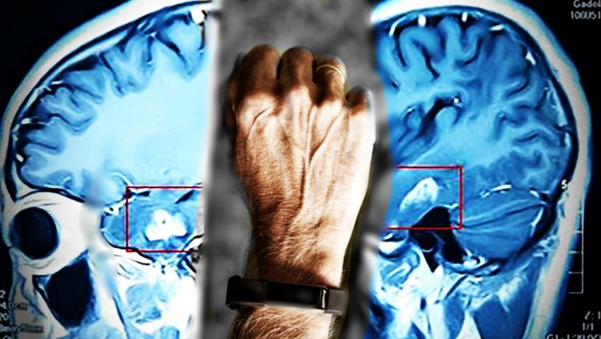 Jak przewidzieć atak padaczki? Wystarczy bransoletka mierząca poziom stresu