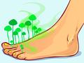 Leczenie grzybicy czosnkiem moze skończyć się popwarzeniem skóry