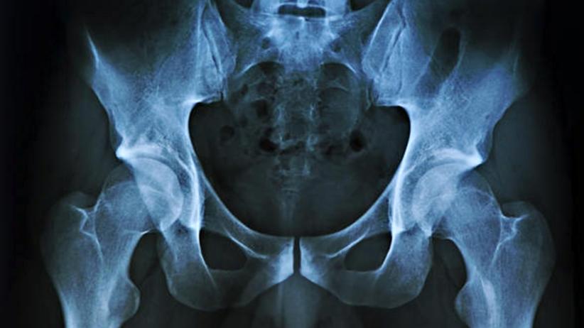 Czarnoskóremu pacjentowi przeszczepiono organ białego człowieka
