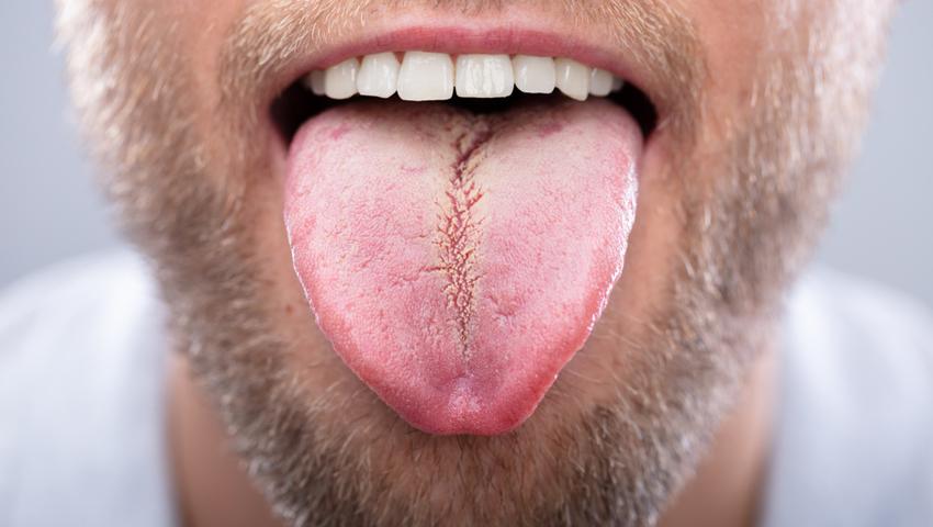 Zdrowy język