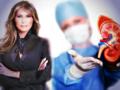 Melania Trump/Embolizacja nerki/