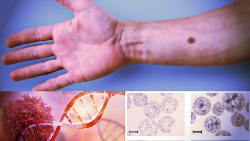 Podskórny implant ostrzeże przed rakiem poprzez... pieprzyk na skórze!