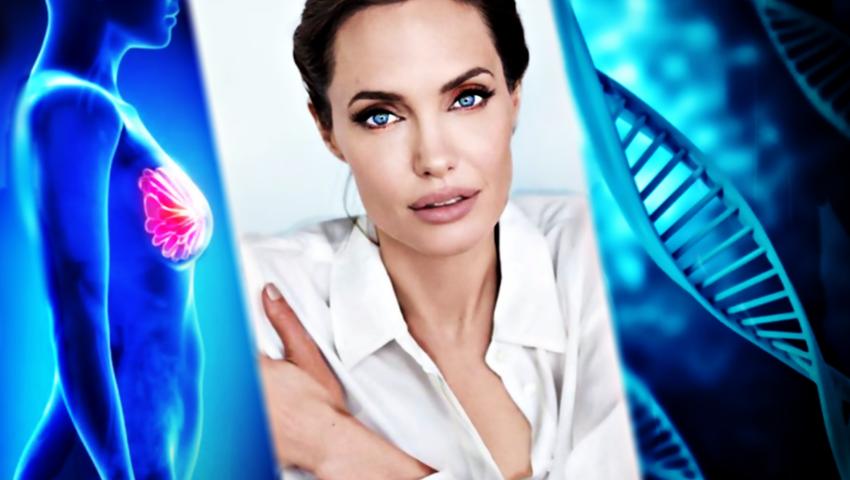 Mastektomia Angeliny Jolie była zbędna? Nowe odkrycie na temat mutacji BRCA