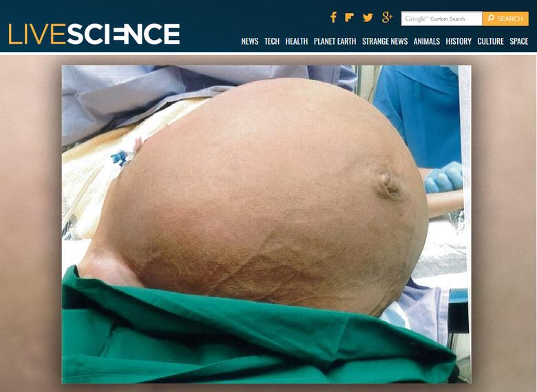 Mięśniak macicy ważył prawie 30 kg, a jego posiadaczka nie mogła się normalnie poruszać