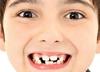 Będą pieniądze na dentobusy? Ministerstwo Zdrowia znalazło środki