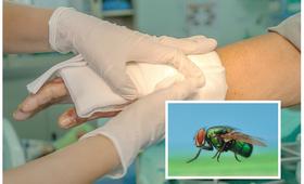 Leczenie ran larwami - larwoterapia
