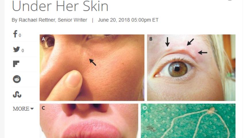 Nicienie pod skórą kobiety po ukąszeniu przez komary