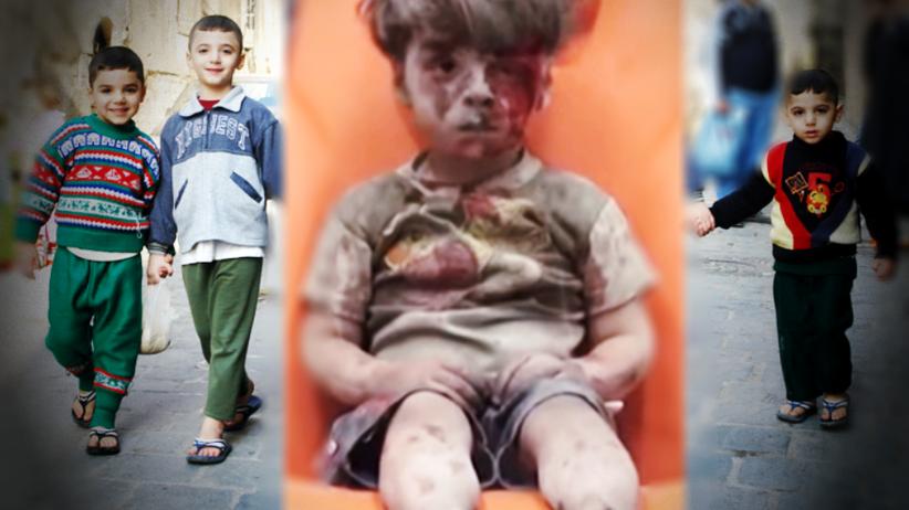 Polska Misja Medyczna będzie pomagać syryjskim dzieciom po amputacjach