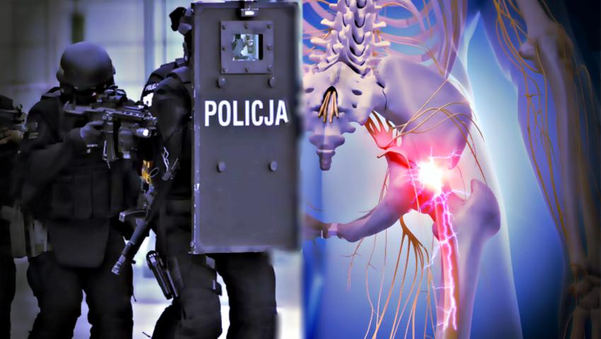 Przeszczep nerwu kulszowego: Pierwszy w Europie zabieg u postrzelonego pod Wrocławiem antyterrorysty