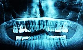 Rosyjska dentystka usunęła pacjentce... 22 zdrowe zęby!