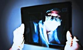 Sepsa na Dolnym Śląsku. Zmarła nastolatka leczona na... grypę jelitową