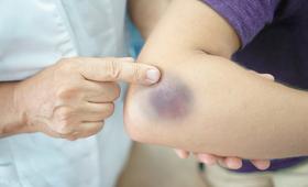 Siniaki nie zawsze są niewinne. Częste siniaki mogą być objawem choroby.