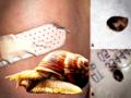 Ślimak zagnieździł się w ranie: pierwszy przypadek w historii medycyny