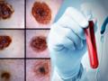 Australijczycy wymyślili pierwszy na świecie test krwi na czerniaka