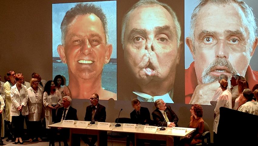 Maurice Desjardins, transplantacja twarzy najstarszego pacjenta na świecie