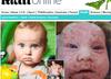 U chłopca stwierdzono aż 50 różnych alergii! Jego życie to ciągłe cierpienie