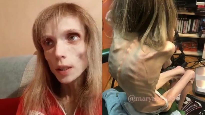 Chora na anoreksję