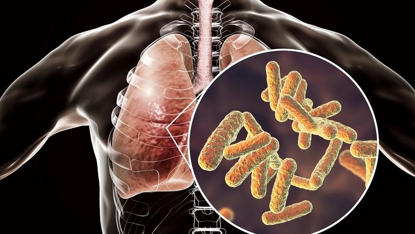 Zapelenie płuc - bakteria legionistów