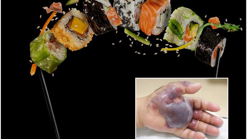 Sushi - powikłania po zjedzeniu sushi