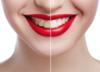 Pasta do zębów, która sama leczy ubytki, przełom w stomatologii?