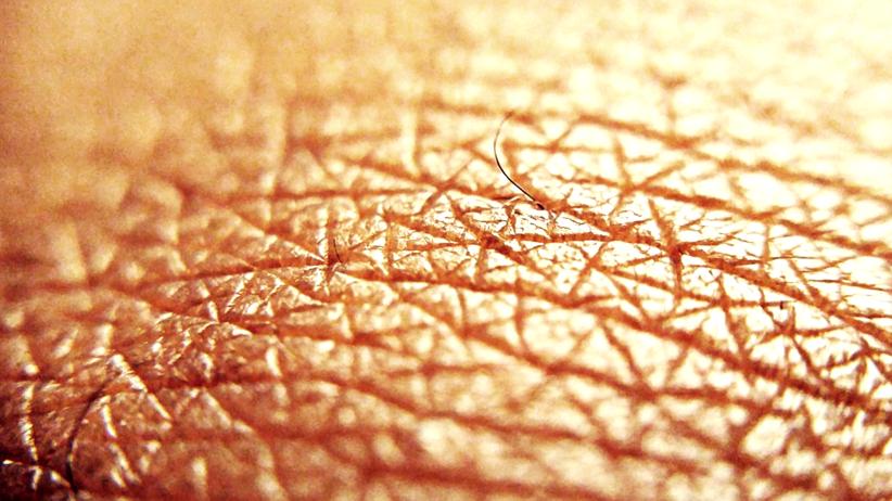 Sprawdź znamiona przed sezonem letnim! Bezpłatne badania skóry
