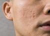 Blizny po trądziku trudno usunąć. Jak pozbyć się blizn potrądzikowych?