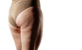 Cellulit dotyczy głównie kobiet, ale nie jest domeną osób otyłych