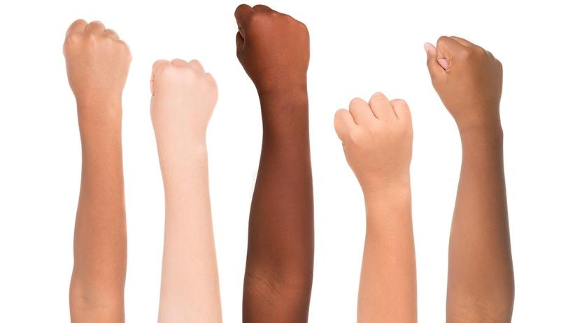 """Jaki kolor skóry uznaje się za """"normalny""""? Skandal w Wielkiej Brytanii"""