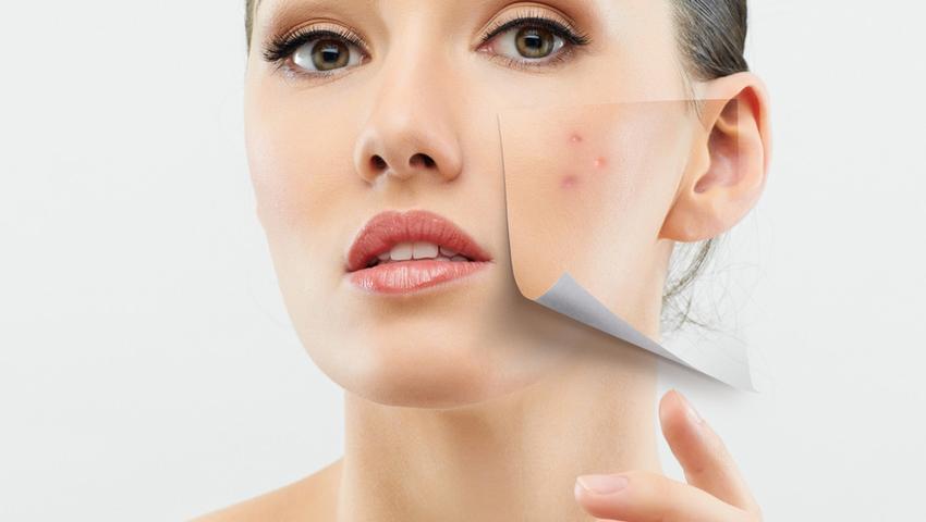 Masz trądzik? Twoja skóra będzie się wolniej starzeć!