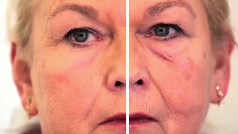 """Koniec z botoksem! Wystarczy XPL - """"druga skóra"""" w kremie"""