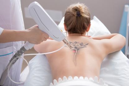 Niechciany tatuaż staje się czasami źródłem wstydu i kompleksów. Na szczęście można go usunąć metodą laserową