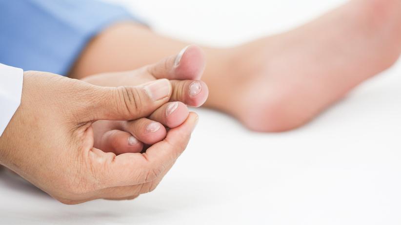 Wrastający paznokieć: profilaktyka to podstawa. Jak leczyć wrastanie paznokci?
