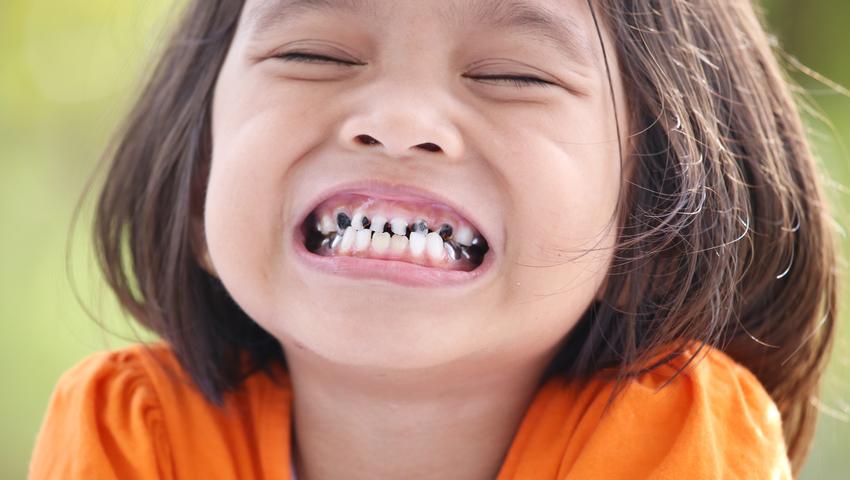Zęby mleczne trzeba leczyć! O mleczaki trzeba dbać jak o zęby stałe
