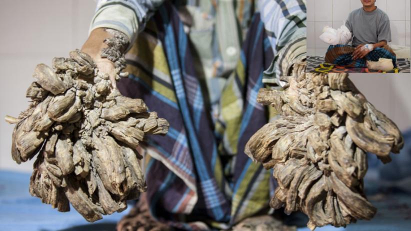 Bangladesz: Po 16 operacjach człowiek-drzewo znów ma zdrowe dłonie
