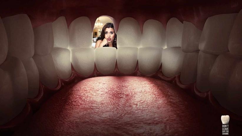 Komórki macierzyste w stomatologii wyeliminują leczenie kanałowe?