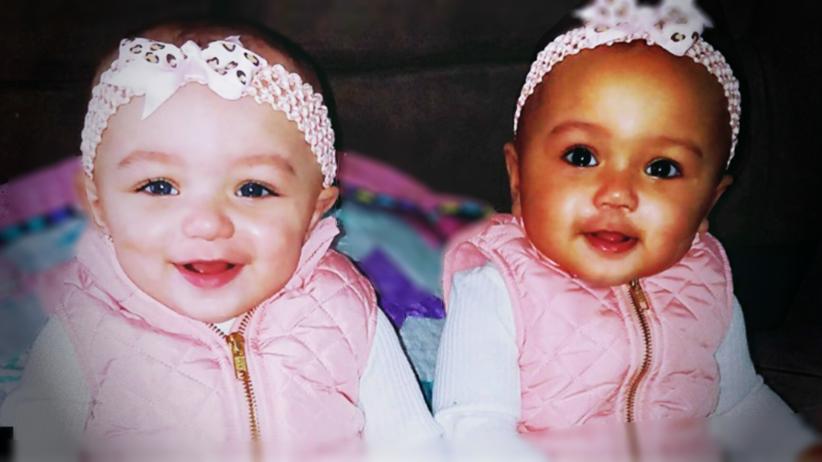 Bliźniaczki o różnym kolorze skóry przyszły na świat w USA