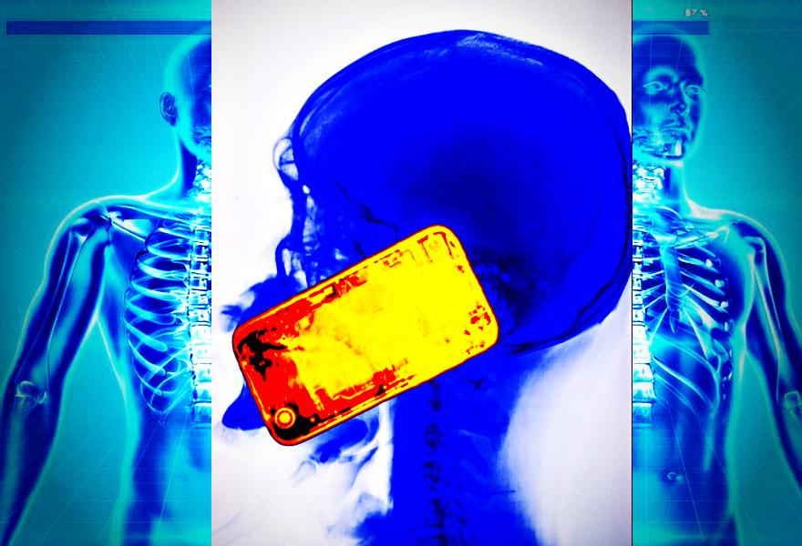 Jak na Twój kręgosłup wpływa korzystanie z telefonu komórkowego?