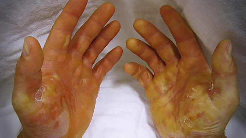 Chorzy na pęcherzowe oddzielanie naskórka dostaną darmowe opatrunki
