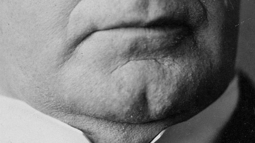 """Koniec z liposukcją? Na rynku pojawił się lek, który pozwoli nam pozbyć się """"drugiego podbródka"""""""