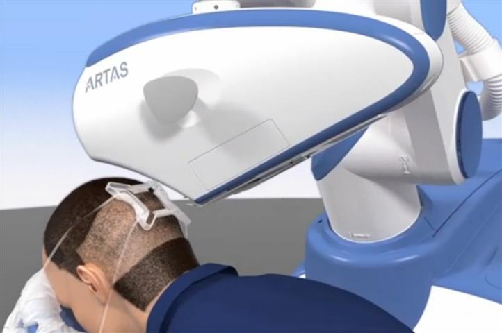 ATRAS - robot do transplantacji włosów