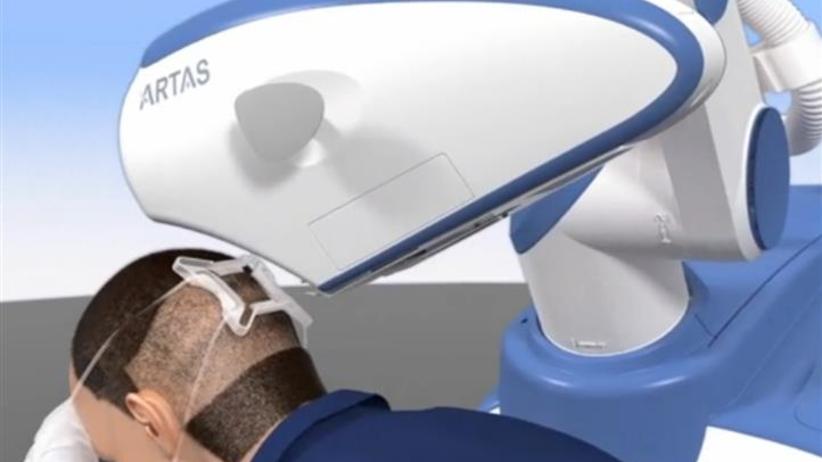 Robot do transplantacji włosów robi przeszczepy za... 20 tys. zł!