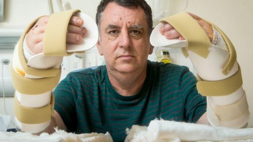 BBC: Podwójna transplantacja rąk