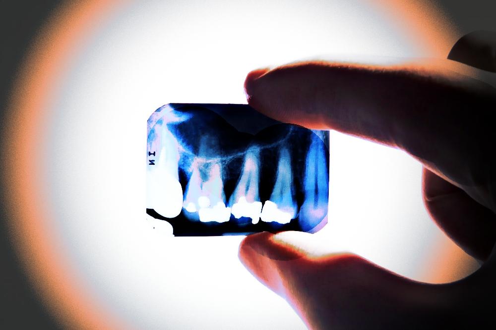 Rtęć zniknie z gabinetów stomatologicznych? Nowy pomysł UE