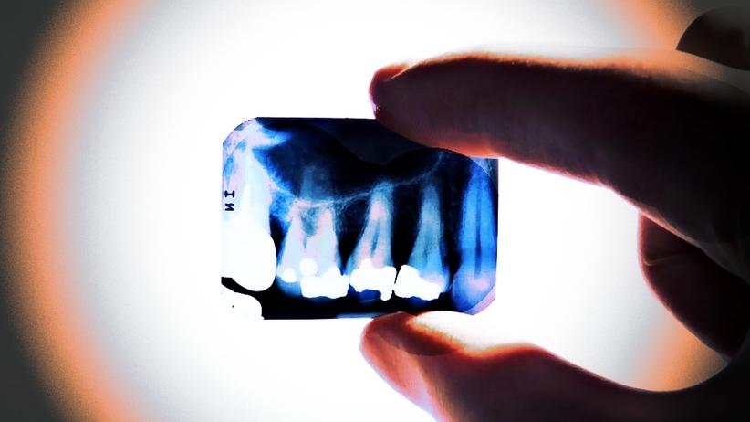 Rtęć zniknie z gabinetów stomatologicznych? Nowe zmiany w prawie