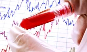 Nie wiesz, jaką masz grupę krwi? Nowy test ustali to w 30 sekund!
