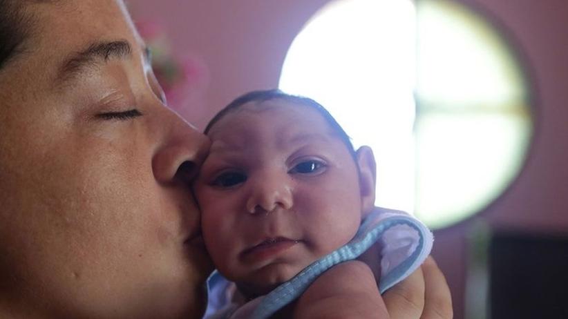 W Hiszpanii urodziło się pierwsze w Europie dziecko z mikrocefalią