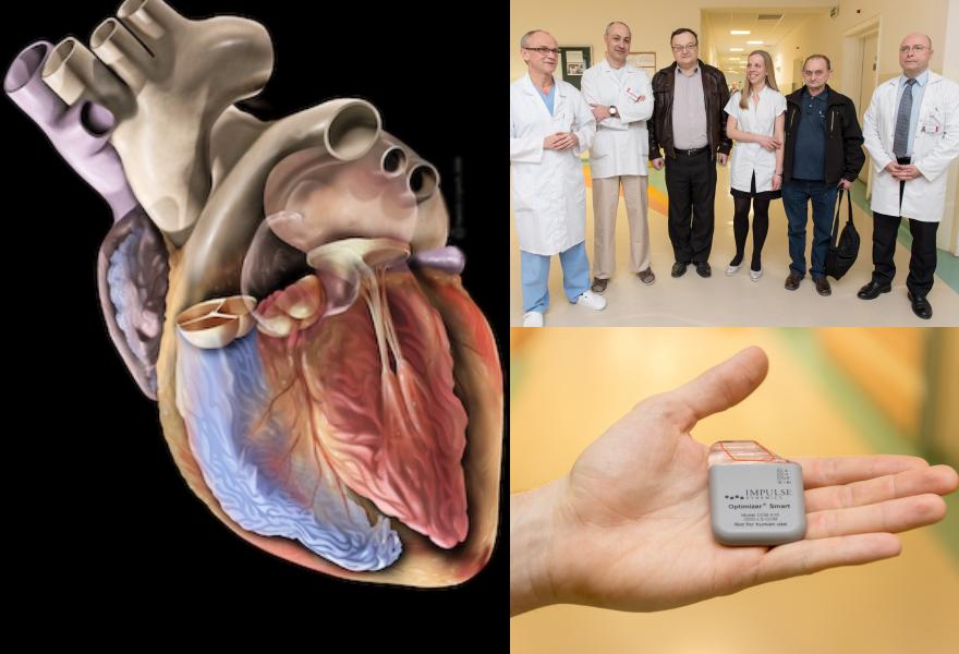 Pierwszy w Polsce zabieg wszczepienia innowacyjnego modulatora serca