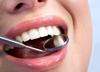 Lek na alzheimera zamiast plomby? Rewolucja w leczeniu zębów